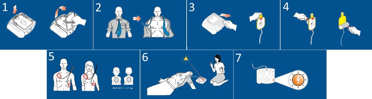 étapes de l'utilisation d'un défibrillateur Philips